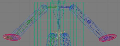 Рис. 25. Вид верхних конечностей после полной корректировки их длины и положения